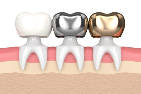 The Dental Crown Placement Process