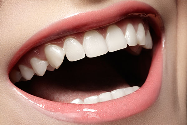 How Your Dentist Can Advise You On A Smile Makeover Treatment