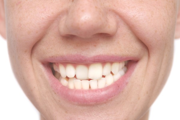 Can Cosmetic Dentistry Procedures Fix Misplaced Teeth?